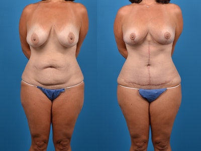 Post-Bariatric Surgery Gallery - Patient 14779180 - Image 1