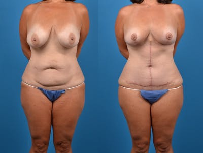 Abdominoplasty Gallery - Patient 14242433 - Image 1