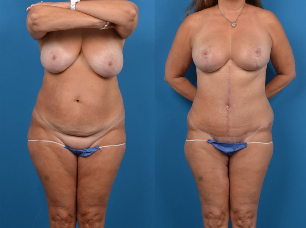 Abdominoplasty Gallery - Patient 14242435 - Image 1