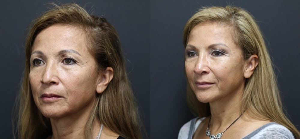 Aesthetic Facial Balancing Gallery - Patient 11682054 - Image 1