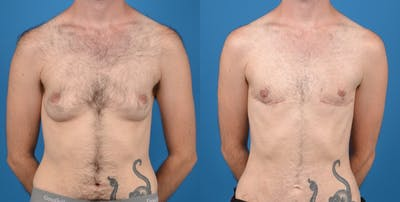 Transgender Surgery (FTM) Gallery - Patient 14242527 - Image 1