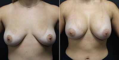 Breast Augmentation Gallery - Patient 14242461 - Image 1