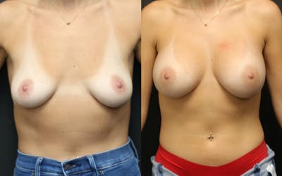 Breast Augmentation Gallery - Patient 14242462 - Image 1