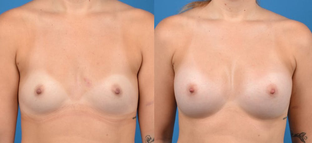 Breast Augmentation Gallery - Patient 14242463 - Image 1