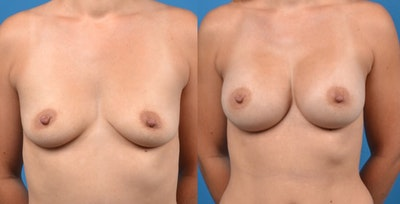 Breast Augmentation Gallery - Patient 14242464 - Image 1