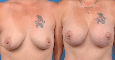 Breast Augmentation Gallery - Patient 14242465 - Image 1