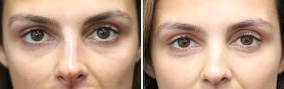 Aesthetic Facial Balancing Gallery - Patient 11681607 - Image 2