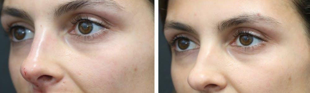 Aesthetic Facial Balancing Gallery - Patient 11681607 - Image 3