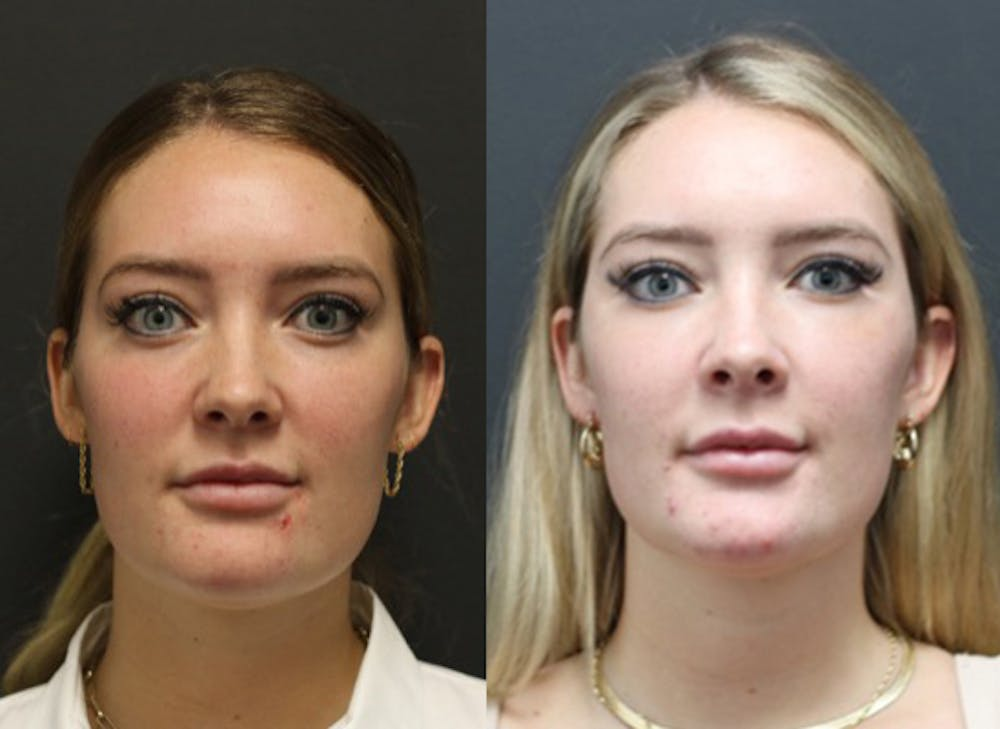 Aesthetic Facial Balancing Gallery - Patient 11682051 - Image 1