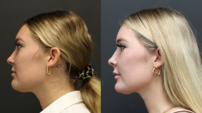 Aesthetic Facial Balancing Gallery - Patient 11682051 - Image 2