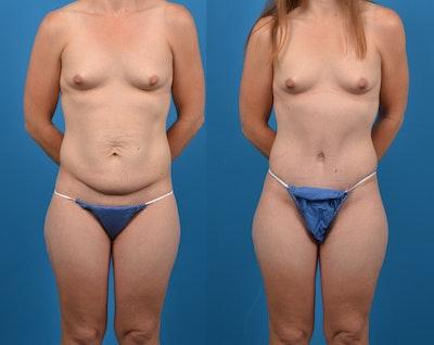 Abdominoplasty Gallery - Patient 14282482 - Image 1