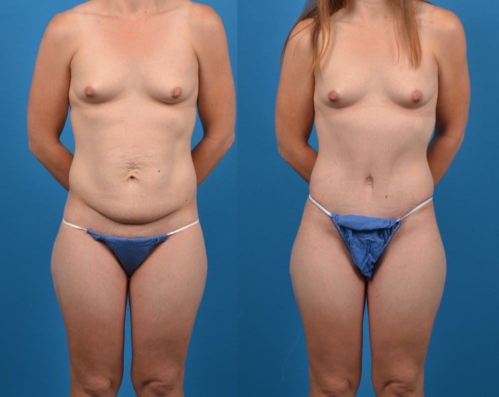 Abdominoplasty Gallery - Patient 14282482 - Image 1