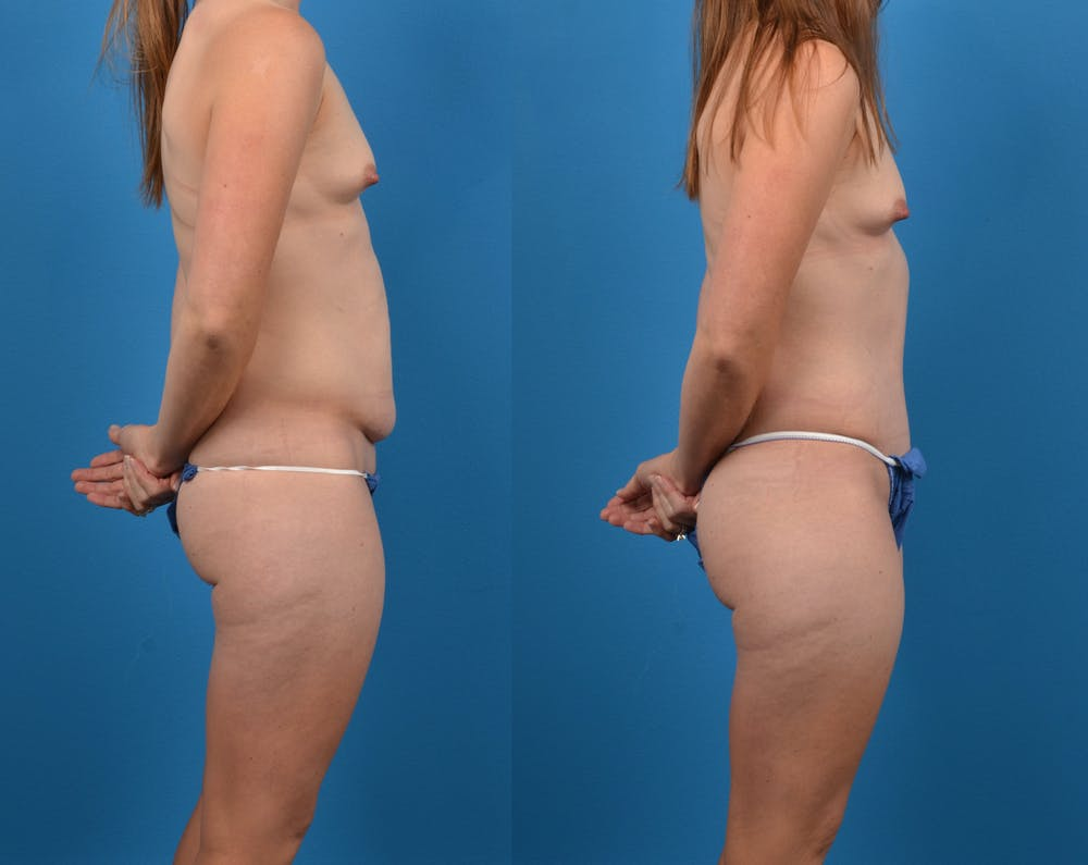 Abdominoplasty Gallery - Patient 14282482 - Image 2