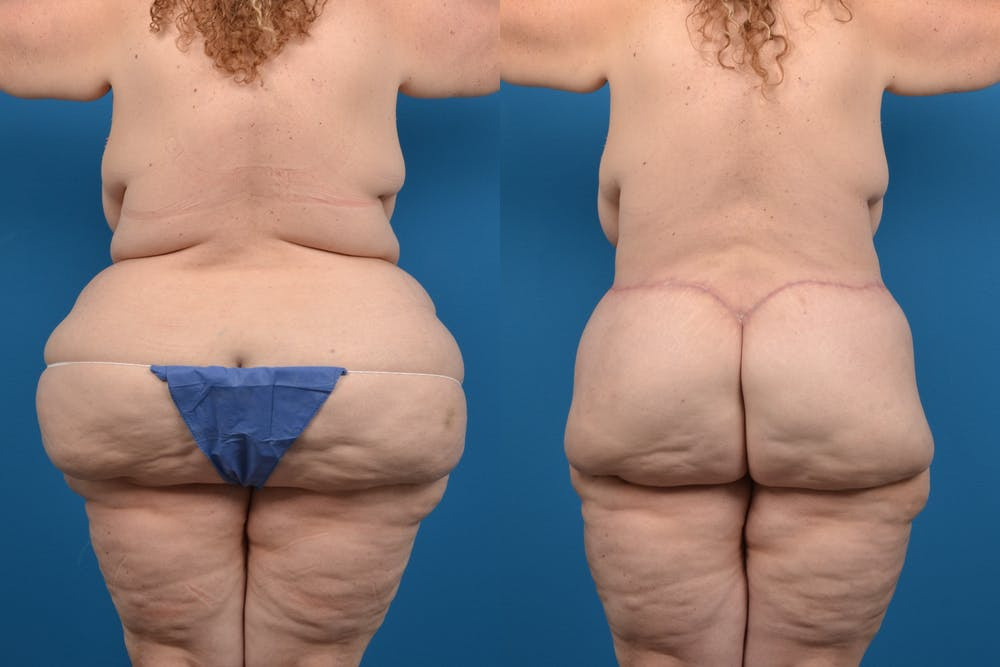 Abdominoplasty Gallery - Patient 14282484 - Image 3