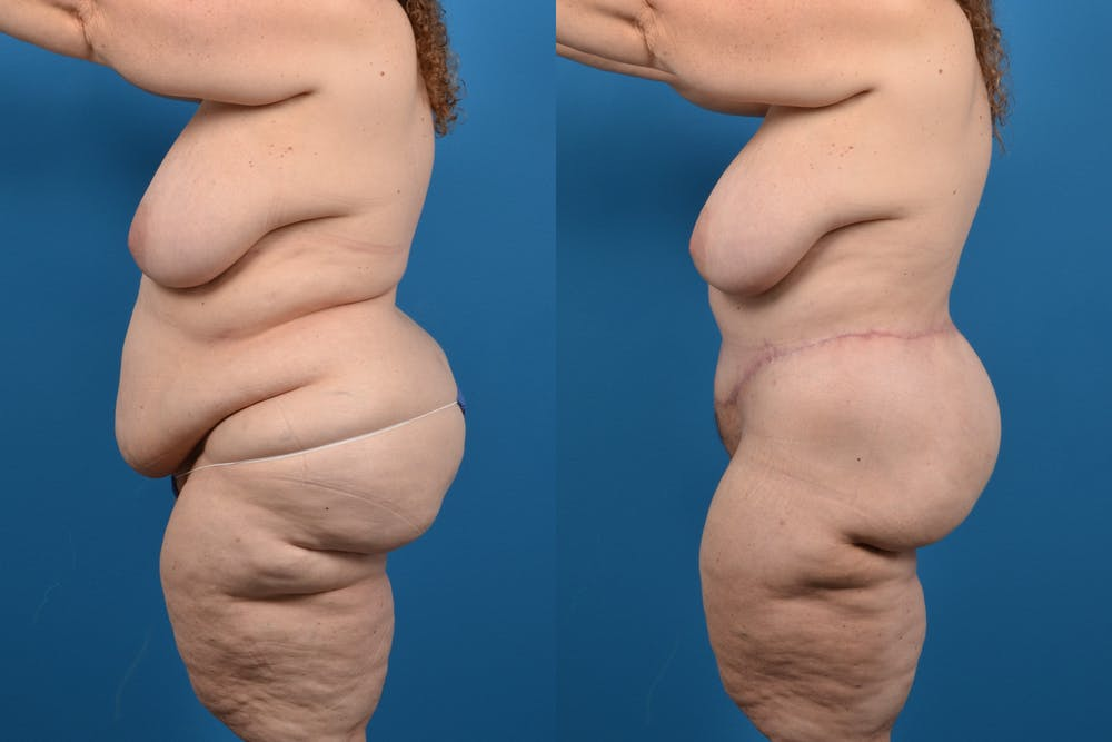 Abdominoplasty Gallery - Patient 14282484 - Image 1