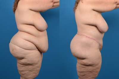Post-Bariatric Surgery Gallery - Patient 14779239 - Image 1