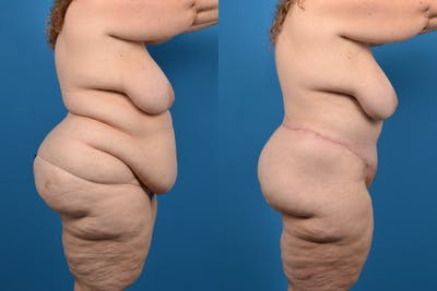 Abdominoplasty Gallery - Patient 14282484 - Image 2