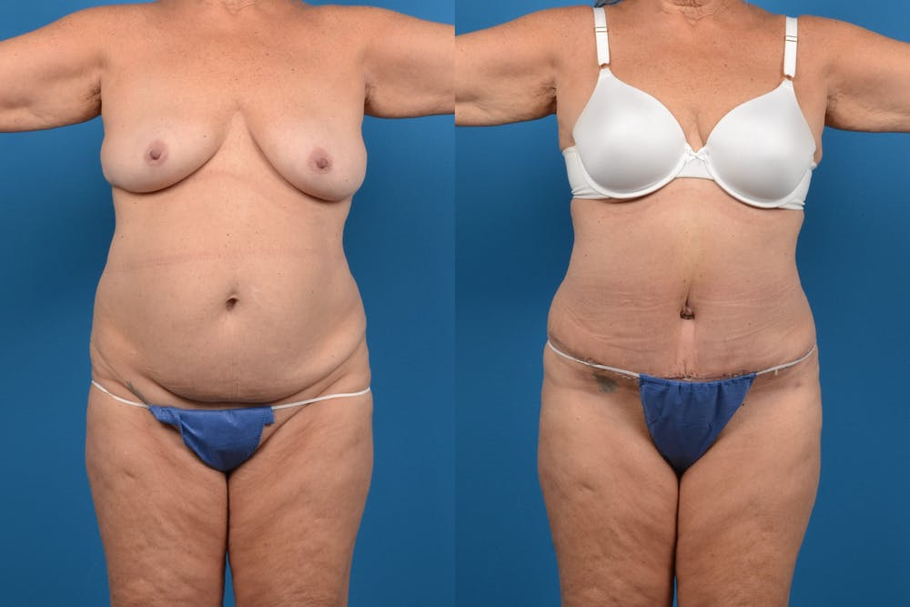 Abdominoplasty Gallery - Patient 14282492 - Image 1
