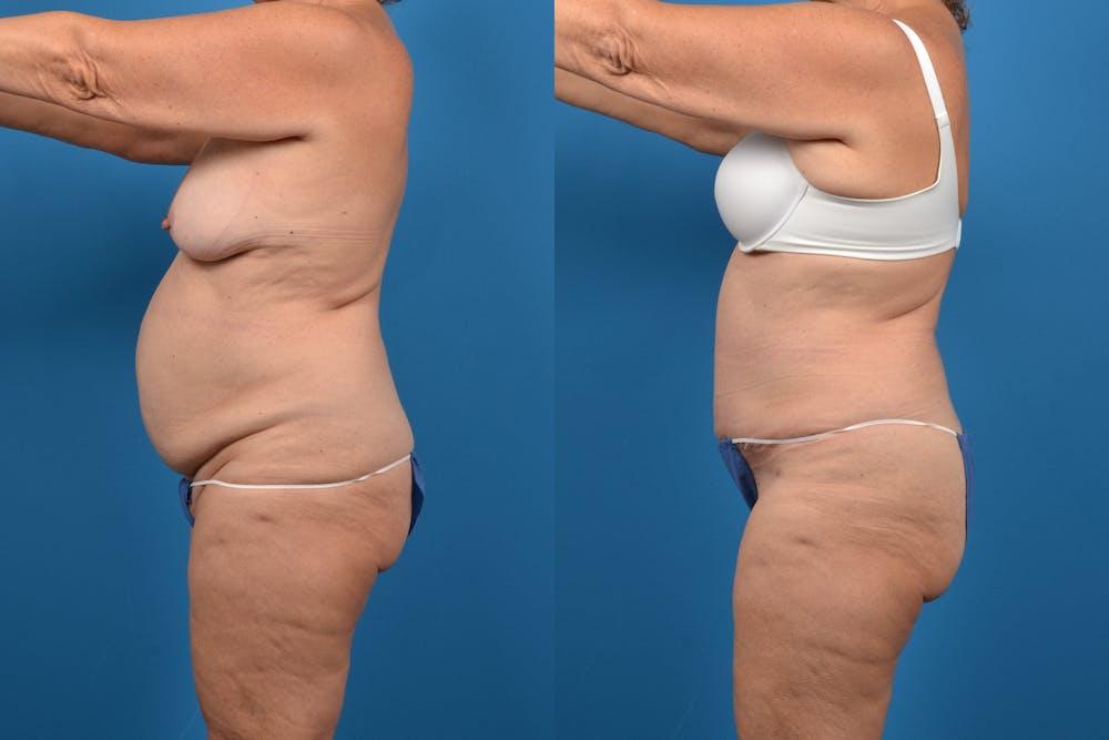 Abdominoplasty Gallery - Patient 14282492 - Image 2