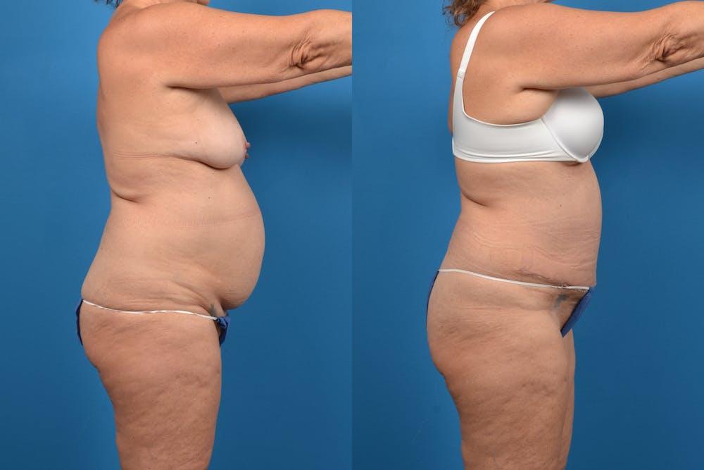 Abdominoplasty Gallery - Patient 14282492 - Image 3