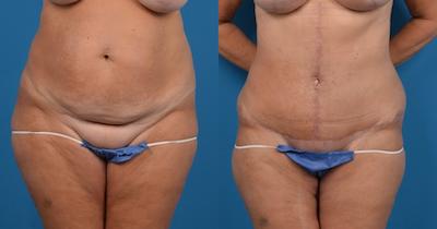 Abdominoplasty Gallery - Patient 14282518 - Image 1