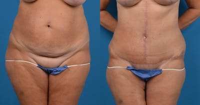 Abdominoplasty Gallery - Patient 14282518 - Image 1