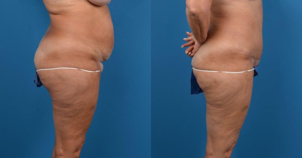 Abdominoplasty Gallery - Patient 14282518 - Image 2