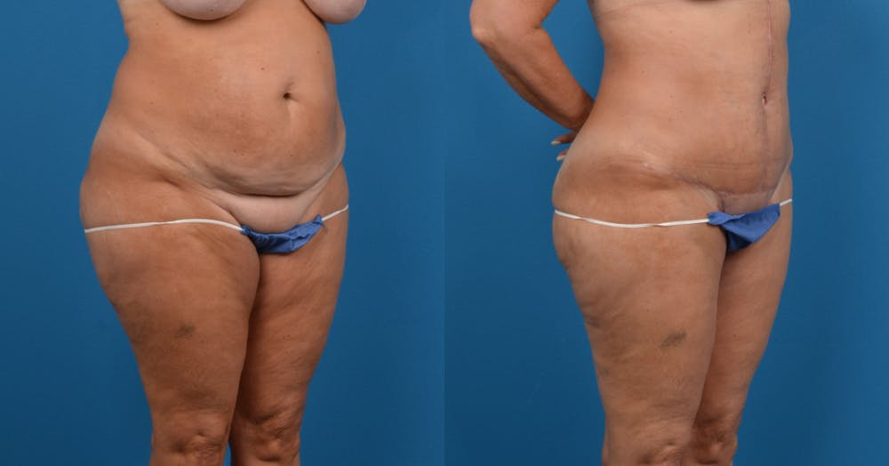 Abdominoplasty Gallery - Patient 14282518 - Image 3