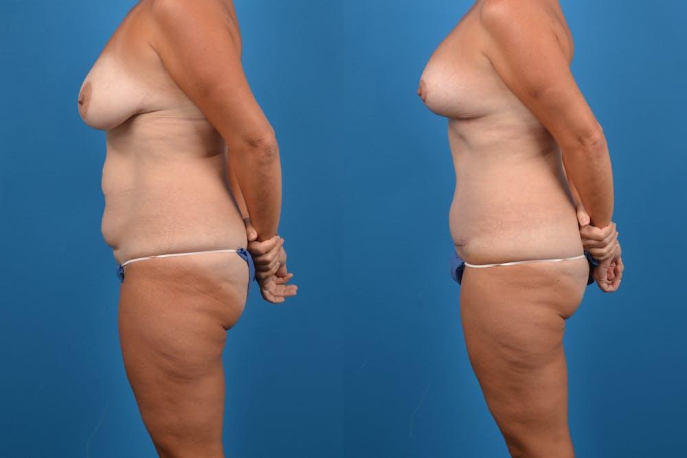 Abdominoplasty Gallery - Patient 14282519 - Image 2