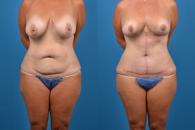 Abdominoplasty Gallery - Patient 14282519 - Image 1