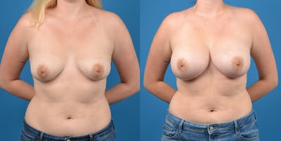 Breast Augmentation Gallery - Patient 14778609 - Image 1