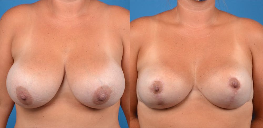 Breast Lift Gallery - Patient 14242475 - Image 1