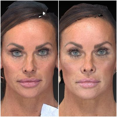 Aesthetic Facial Balancing Gallery - Patient 14282627 - Image 1