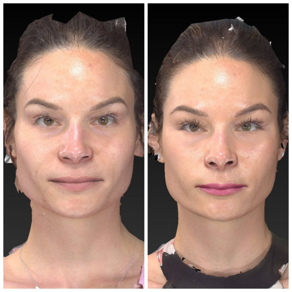 Aesthetic Facial Balancing Gallery - Patient 14282628 - Image 1