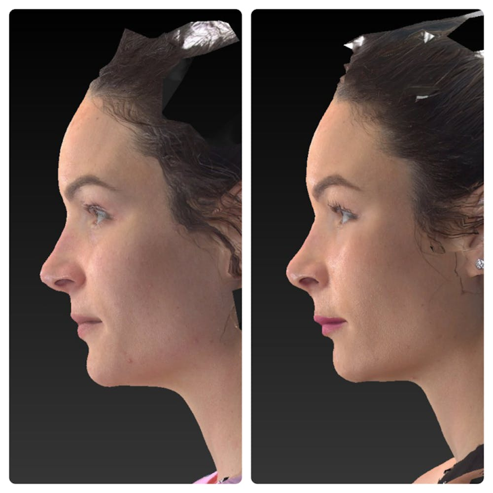 Aesthetic Facial Balancing Gallery - Patient 14282628 - Image 3