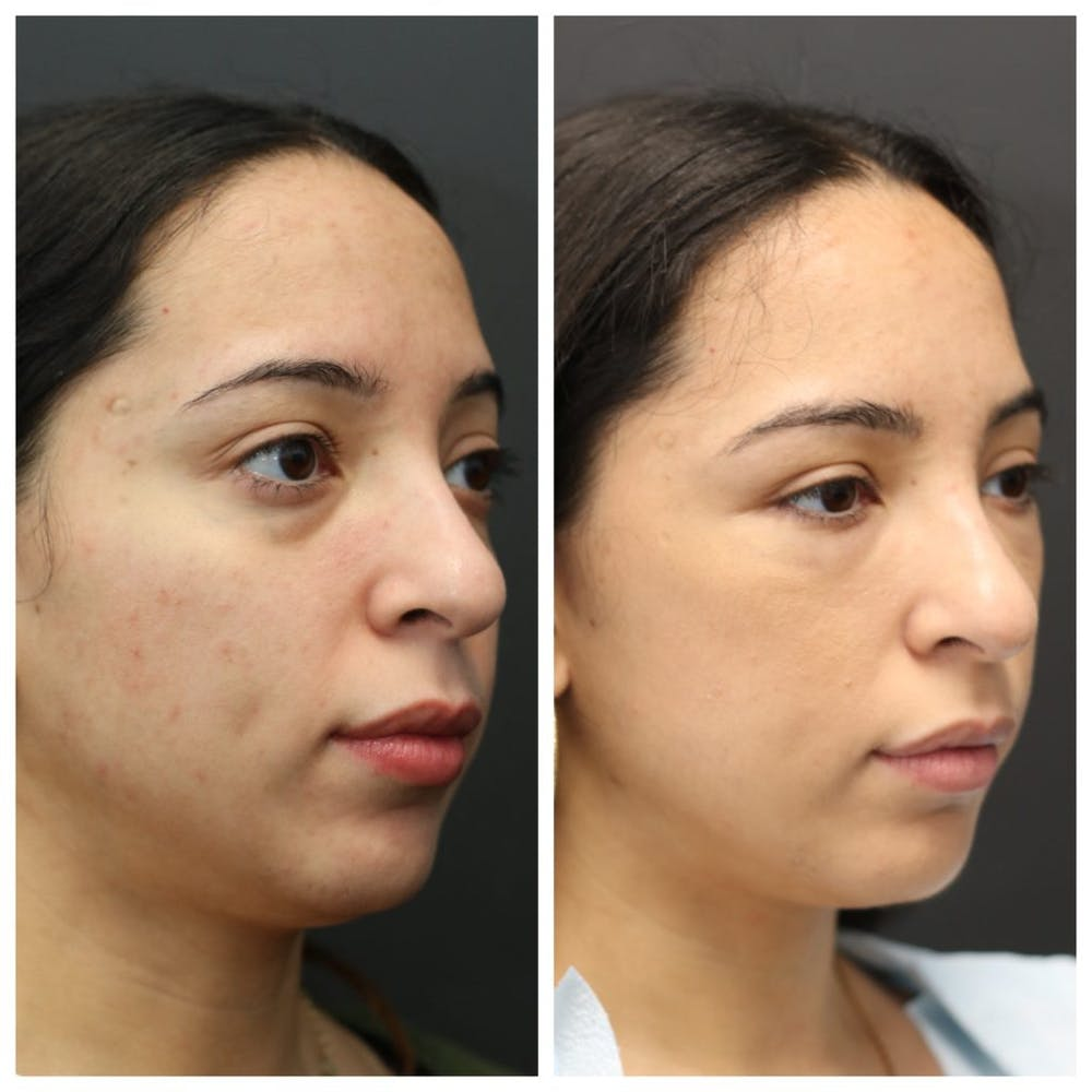 Aesthetic Facial Balancing Gallery - Patient 14282629 - Image 2