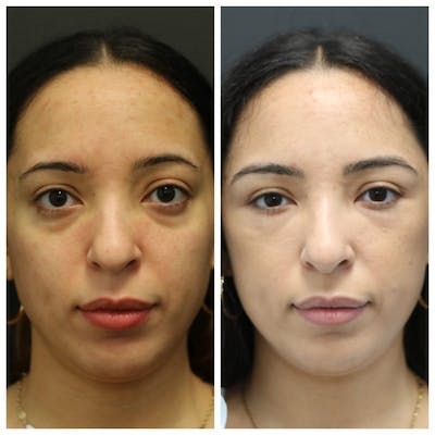 Aesthetic Facial Balancing Gallery - Patient 14282629 - Image 1