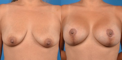 Breast Lift Gallery - Patient 14779141 - Image 1