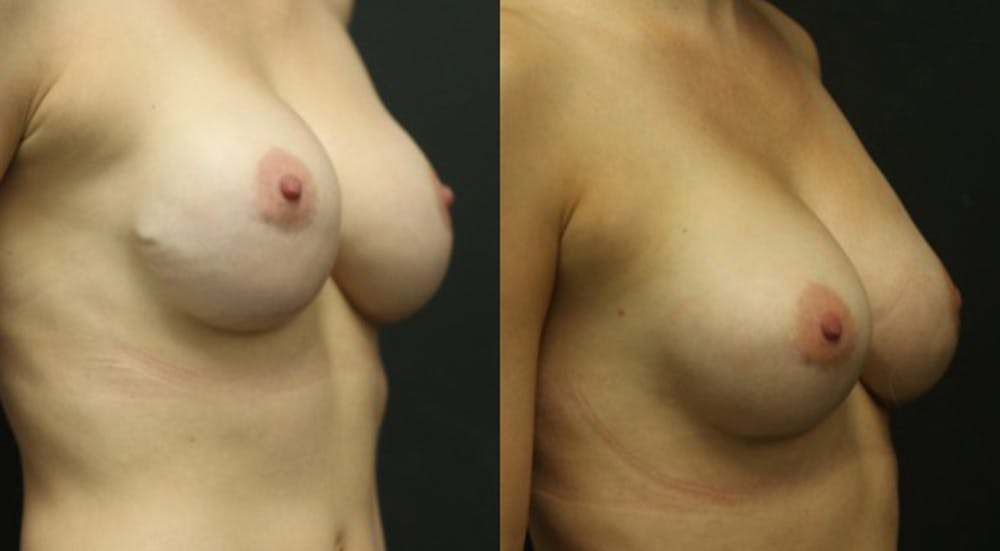 Breast Revision Gallery - Patient 11681813 - Image 1