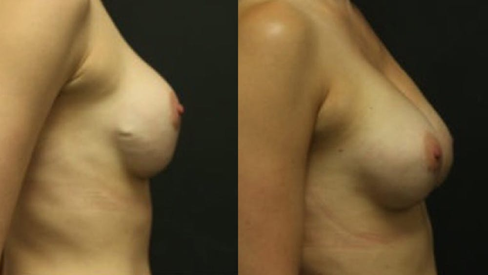 Breast Revision Gallery - Patient 11681813 - Image 2