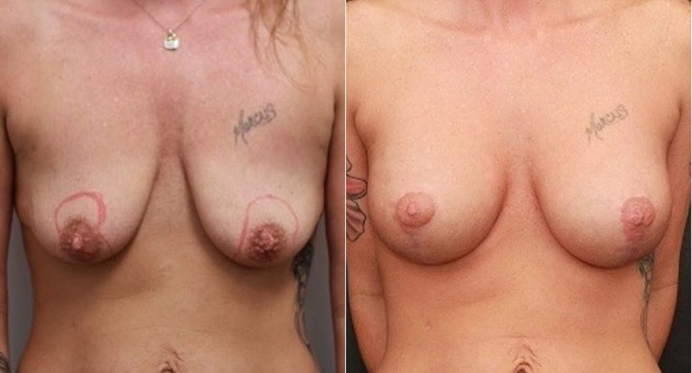 Breast Lift Gallery - Patient 11681795 - Image 1