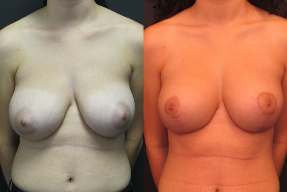 Breast Lift Gallery - Patient 11681804 - Image 1