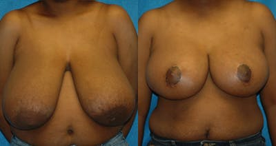 Breast Lift Gallery - Patient 11681805 - Image 1