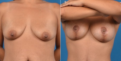 Breast Lift Gallery - Patient 11681987 - Image 1