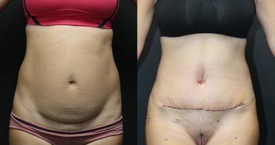 Abdominoplasty Gallery - Patient 14391441 - Image 1
