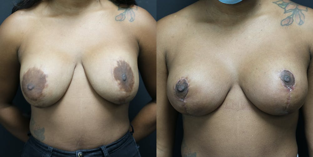 Breast Revision Gallery - Patient 14779144 - Image 1