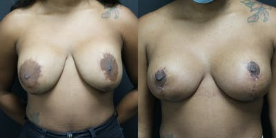 Breast Lift Gallery - Patient 14779143 - Image 1