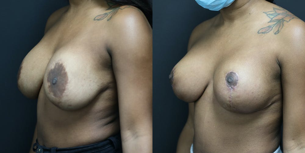 Breast Revision Gallery - Patient 14779144 - Image 2