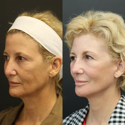 Facelift Gallery - Patient 14390174 - Image 1