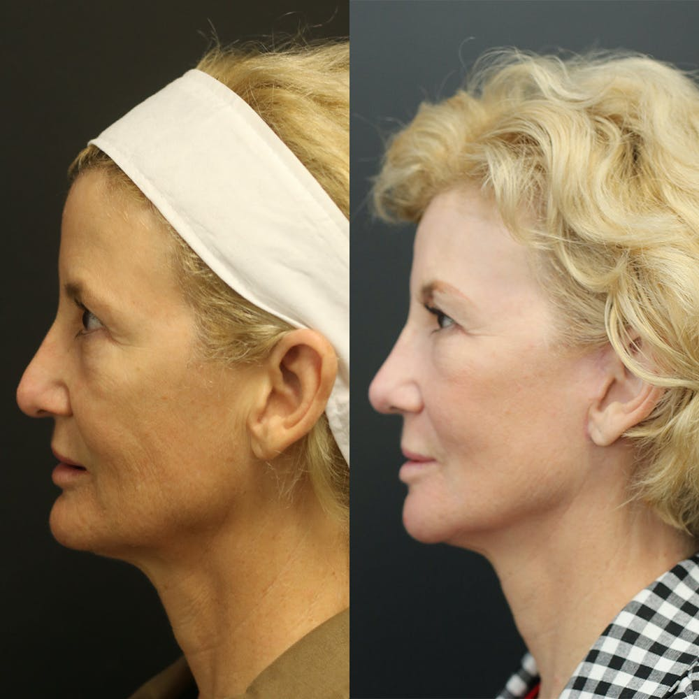 Facelift Gallery - Patient 14390174 - Image 2
